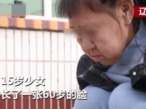 15岁少女长60岁脸 病因曝光一封信令其人生出现转折