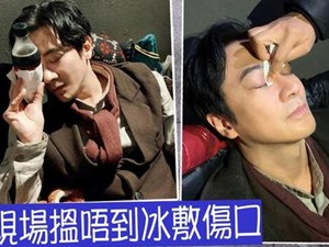 孙耀威被打伤眼角 具体的细节让人心疼好在
