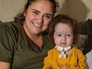 2岁女童面容衰老 具体原因详情曝光让人心疼了