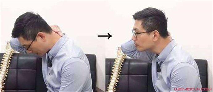 富贵包是颈椎病吗