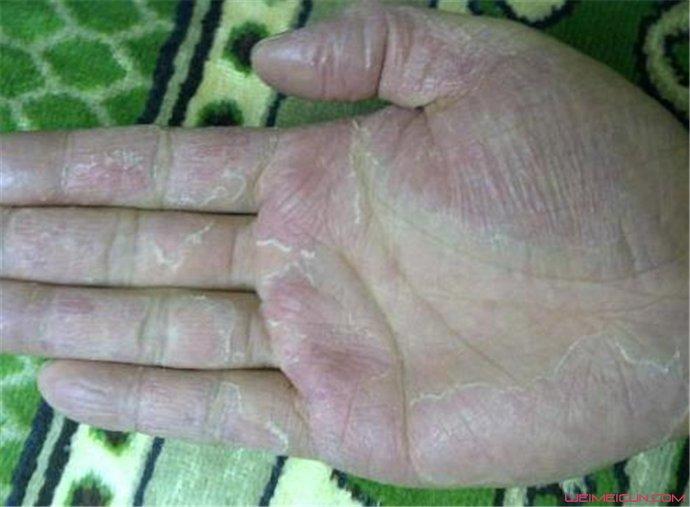 手老是脱皮能治好吗
