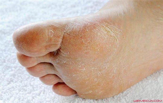 脚底脱皮痒是什么原因造成的