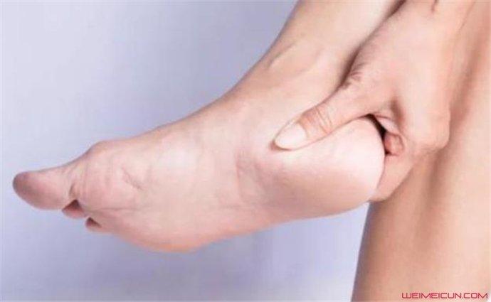 脚后跟疼怎么治疗