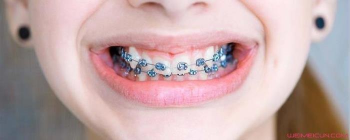 为什么日本女优的牙齿都难看