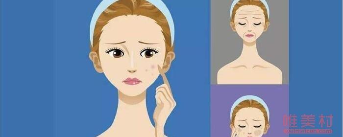 光子嫩肤有年龄限制吗